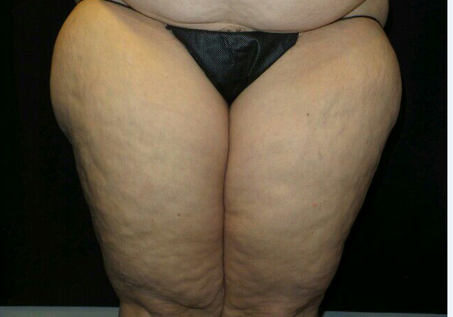 CoolSculpting Outer Thighs Before