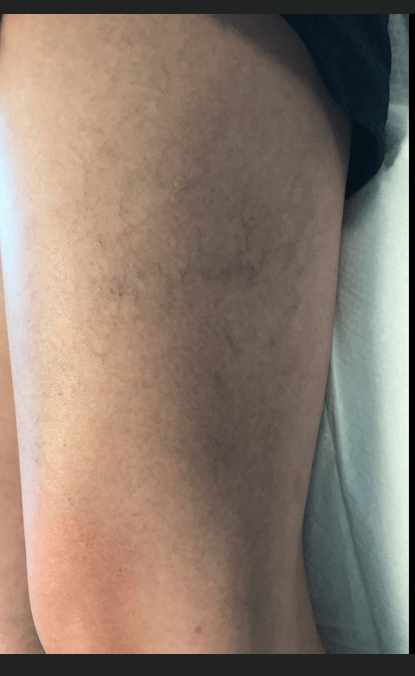 Spider Vein Treatment Before
