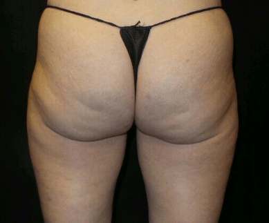 CoolSculpting Outer Thighs After