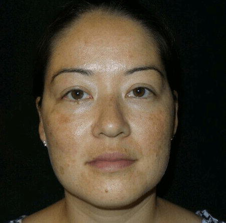 IPL results for Sun Damage Before