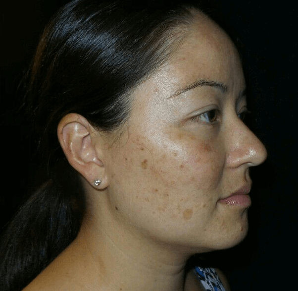 IPL for results for Sun Damage Before