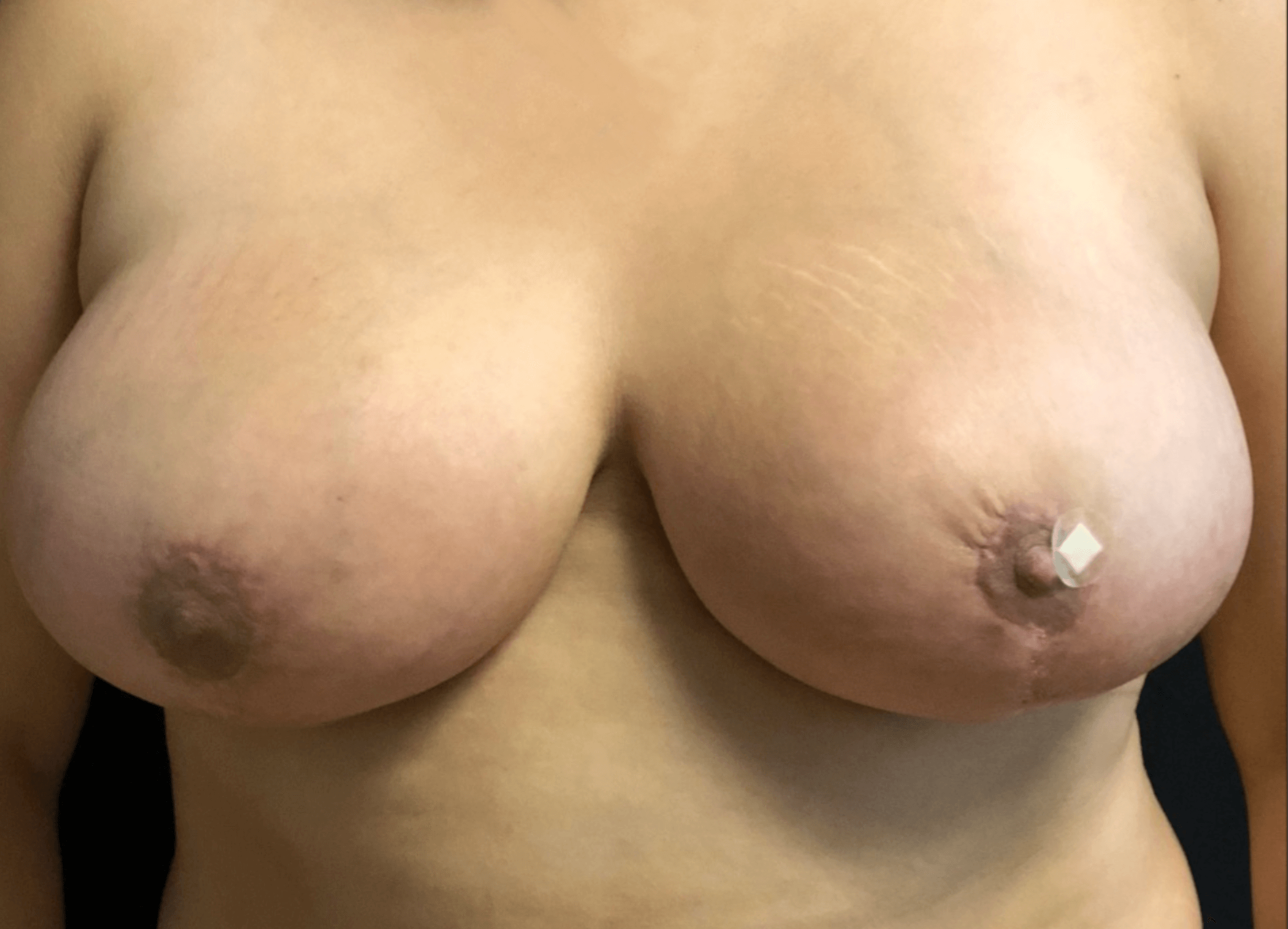 Bilateral Breast Reduction After