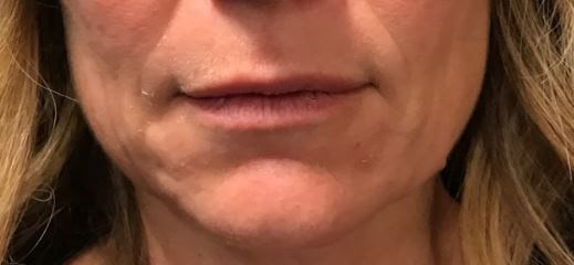 Lip filler Before