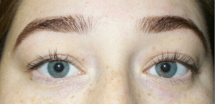 Lash Perm+Lash and Brow Tint After