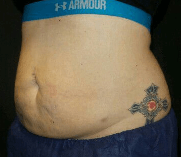 CoolSculpting Flanks + Abdomen Before