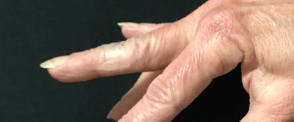 Cyst on finger After