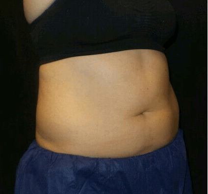 Abdomen Coolsculpting Before