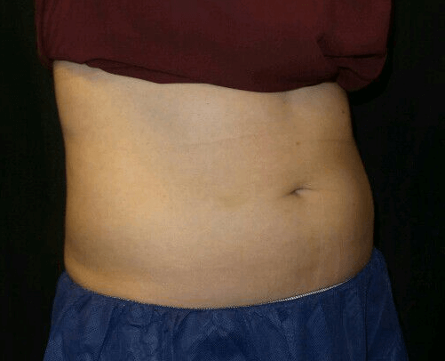 Abdomen Coolsculpting After