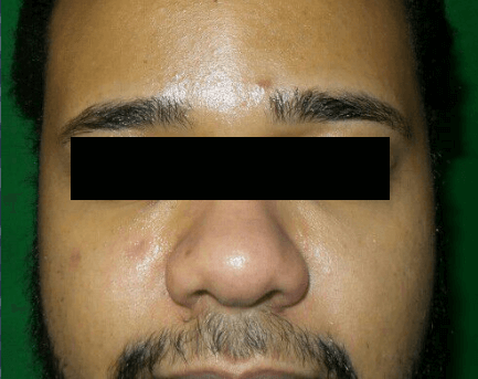 Series of Chemical Peels Before