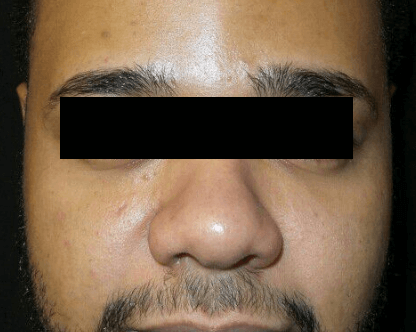 Series of Chemical Peels After