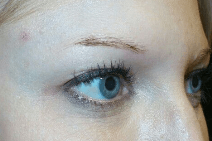 Microblading of the Eyebrows Before