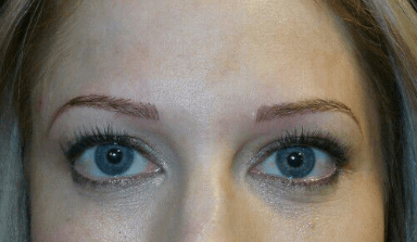 Microblading of the Eyebrows After