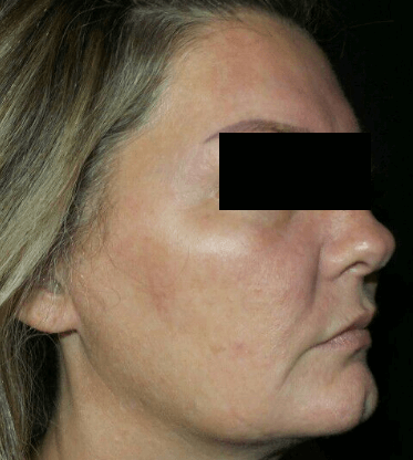 IPL for Uneven Skin Tone Before