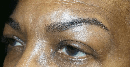 Microblading for Eyebrows After