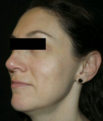 IPL for Uneven Skin Tone After