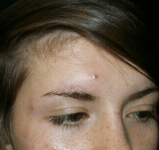 IPL for Acne/PIH Before