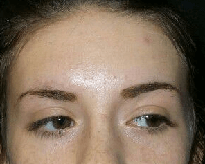 IPL for Acne/PIH After