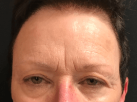 Botox for Upper Face Lines Before