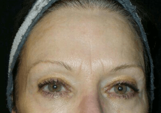 Botox for Upper Face Lines After