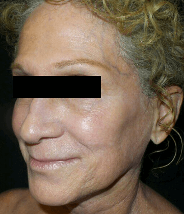 Chemical Peel + IPL Before