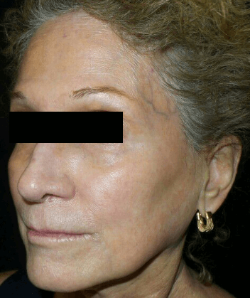 Chemical Peel + IPL After
