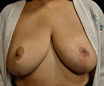 Nipple Areola Tattooing Before