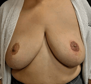 Nipple Areola Tattooing After