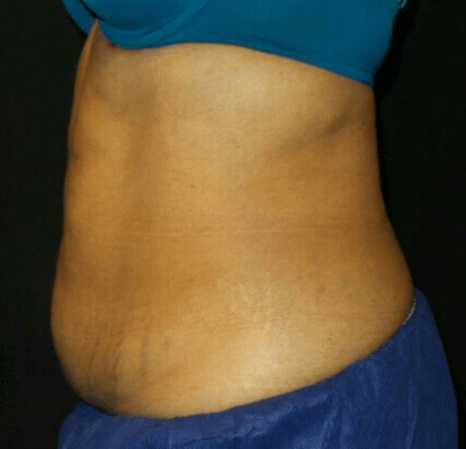 CoolSculpting of the Abdomen Before