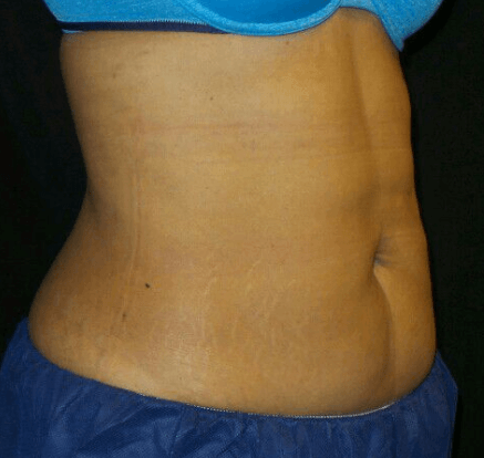 CoolSculpting of the Abdomen After