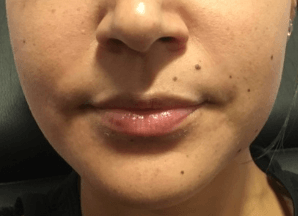 Restylane for Voluminous Lips Before