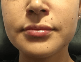 Restylane for Voluminous Lips After
