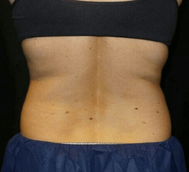 CoolSculpting Abdomen + Flanks After