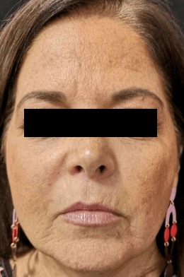 Juvederm Vollure + Botox Before