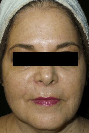 Juvederm Vollure + Botox After