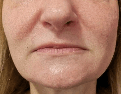 Juvederm for Lip Plumping Before