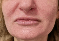 Juvederm for Lip Plumping After