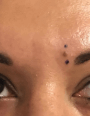 Mole Removal Before