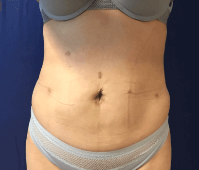 Liposuction abdomen + flanks After