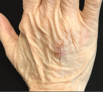Squamous Cell Carcinoma After
