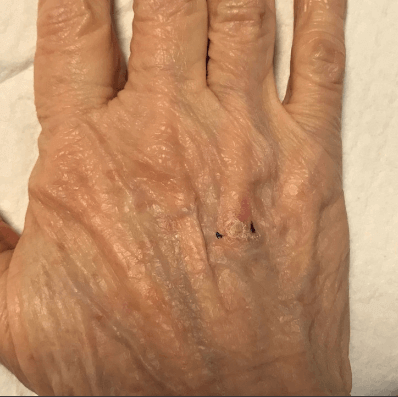 Squamous Cell Carcinoma Before