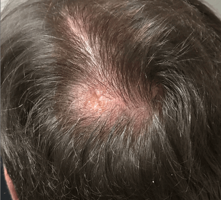 Scalp excision After