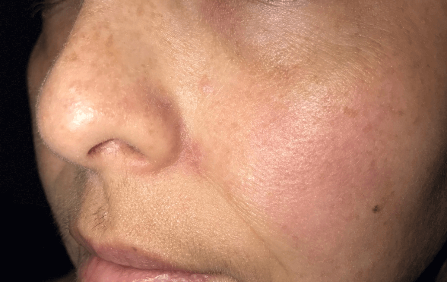 Mole Removal on Face After