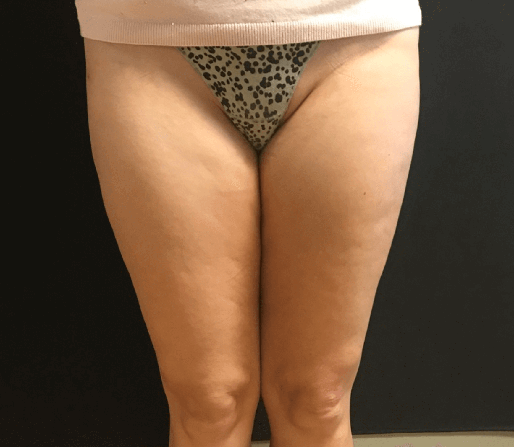 Outer Thigh Liposuction After