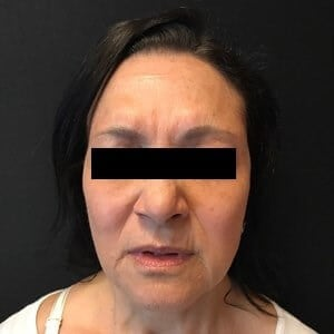 Botox & Juvederm Ultra After