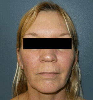 Facial Redness IPL laser After