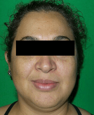 Excellent chemical peel result After