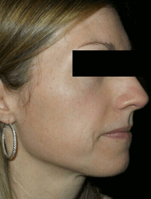 SkinMedica Vitalize Peels After