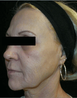 Microneedling with SkinPen After
