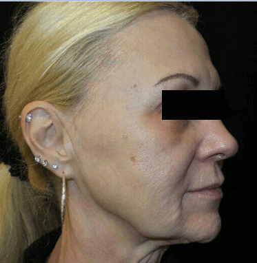 Microneedling with SkinPen Before