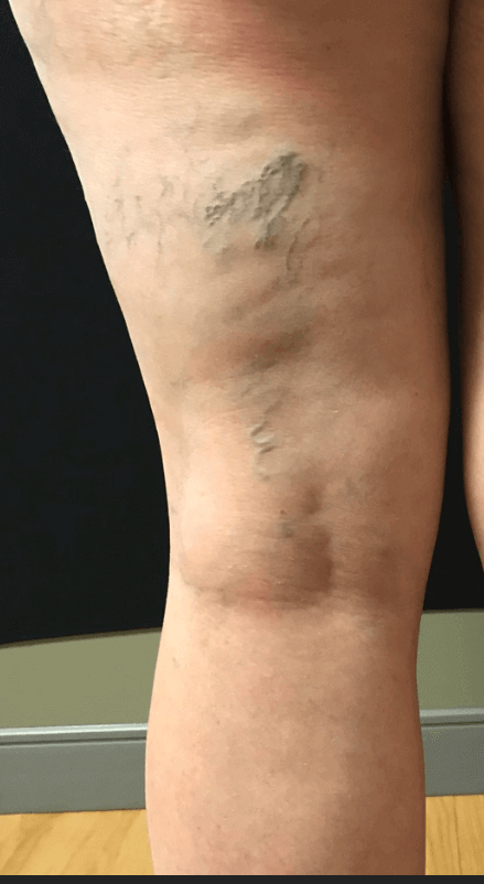 Large spider veins Before